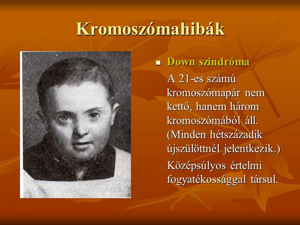 Kromoszómahibák Down szindróma