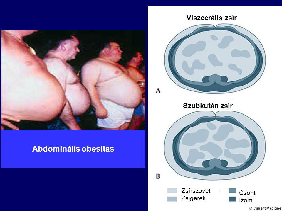Abdominális obesitas Viszcerális zsír Szubkután zsír Zsírszövet Csont