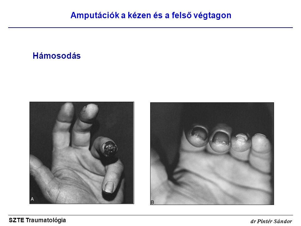 Amputációk a kézen és a felső végtagon
