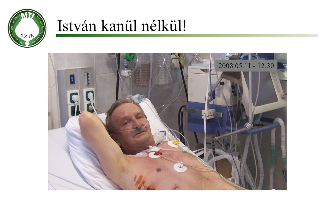 István kanül nélkül! 2008.05.11 - 12:30 Molnár '99