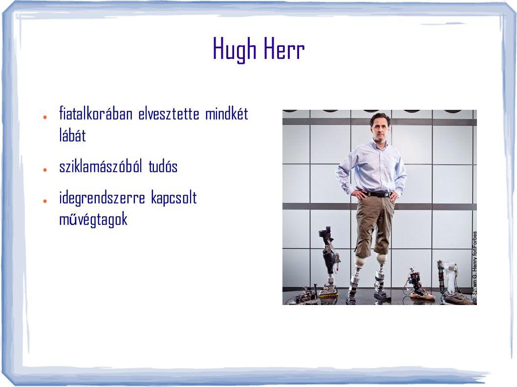 Hugh Herr fiatalkorában elvesztette mindkét lábát sziklamászóból tudós
