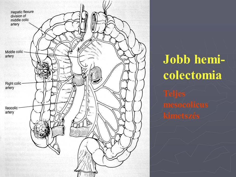Jobb hemi-colectomia Teljes mesocolicus kimetszés