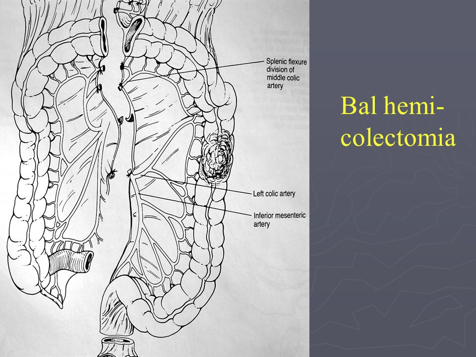 Bal hemi-colectomia