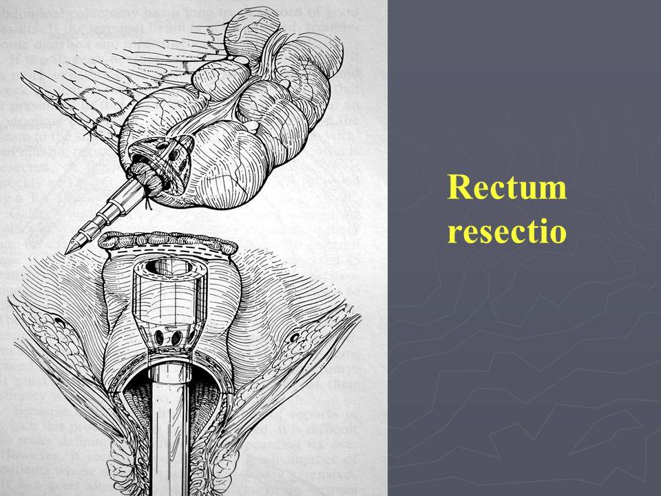 Rectum resectio