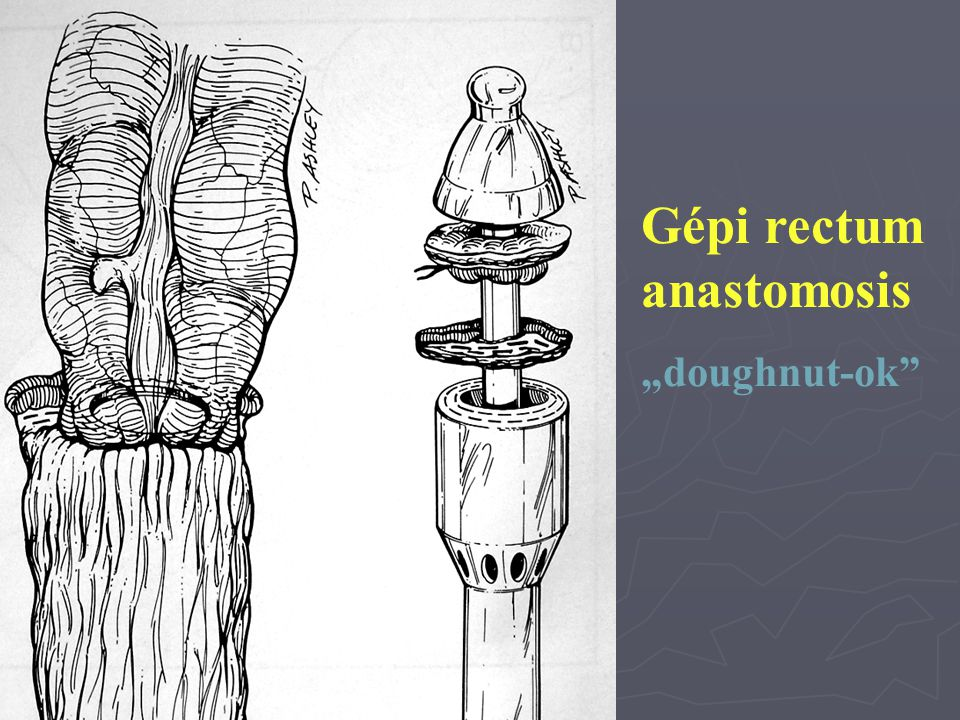 Gépi rectum anastomosis