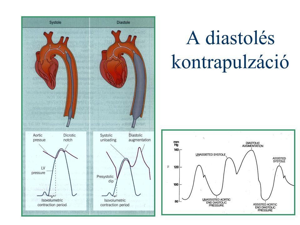 A diastolés kontrapulzáció