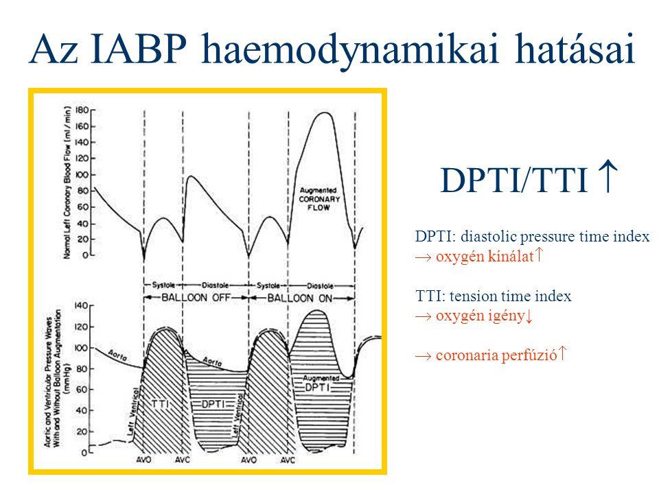 Az IABP haemodynamikai hatásai