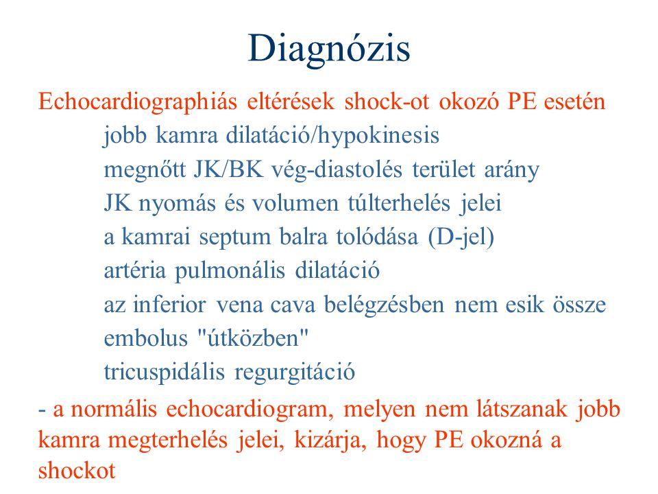 Diagnózis Echocardiographiás eltérések shock-ot okozó PE esetén