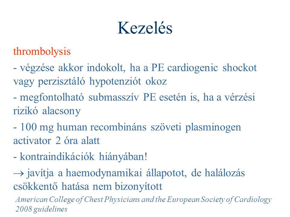 Kezelés thrombolysis. - végzése akkor indokolt, ha a PE cardiogenic shockot vagy perzisztáló hypotenziót okoz.