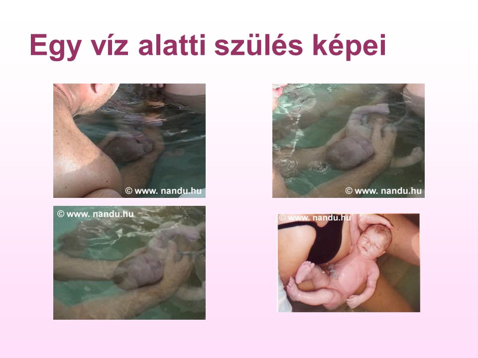 Egy víz alatti szülés képei