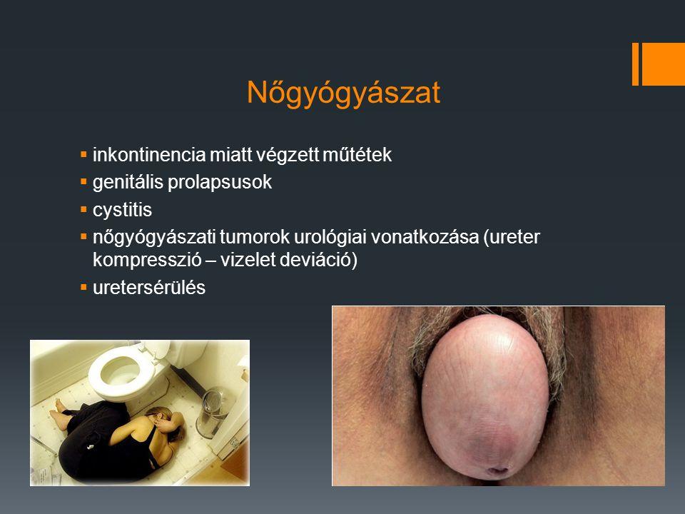 Nőgyógyászat inkontinencia miatt végzett műtétek genitális prolapsusok