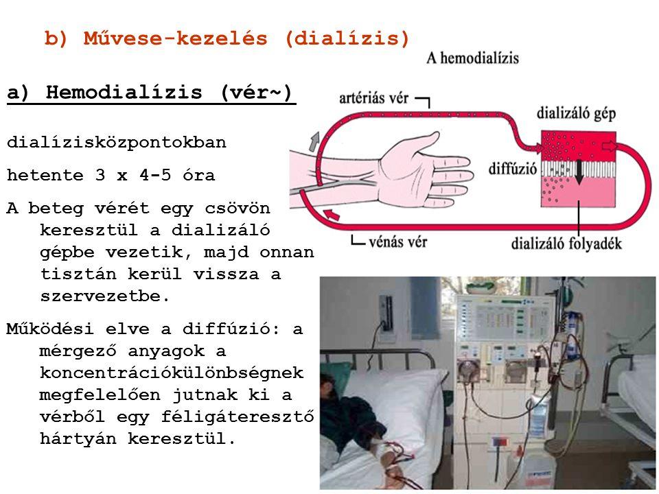 b) Művese-kezelés (dialízis)