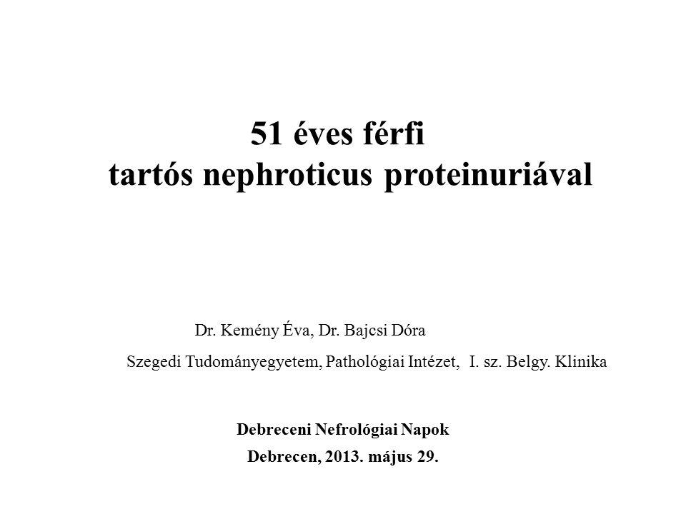 51 éves férfi tartós nephroticus proteinuriával