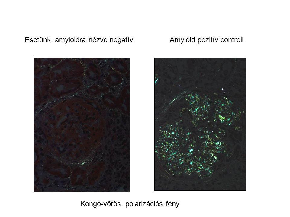 Esetünk, amyloidra nézve negatív. Amyloid pozitív controll.