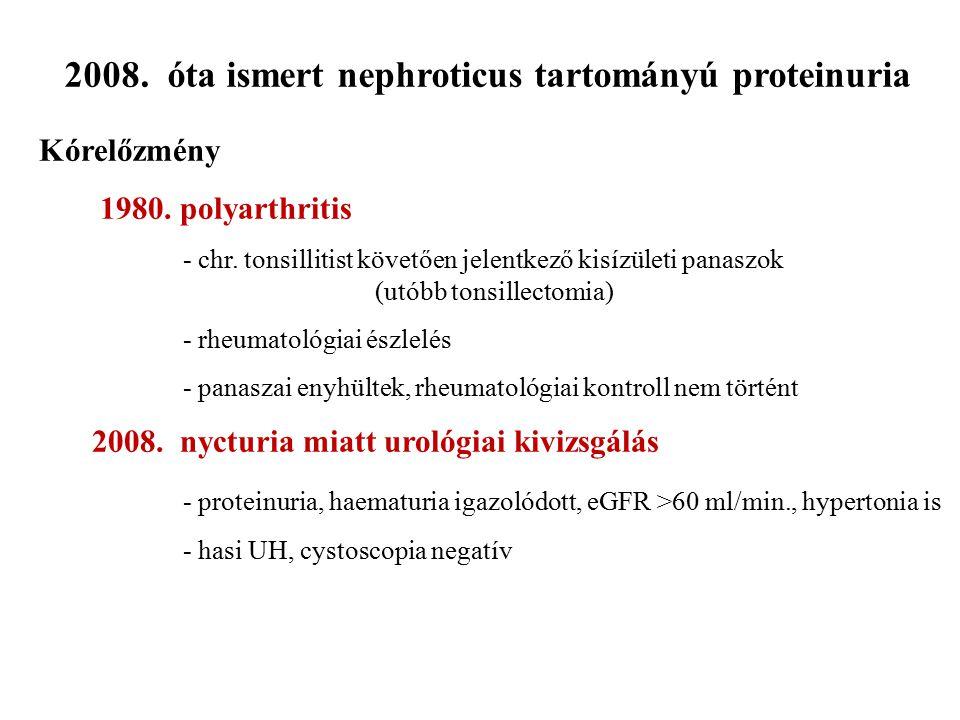 2008. óta ismert nephroticus tartományú proteinuria