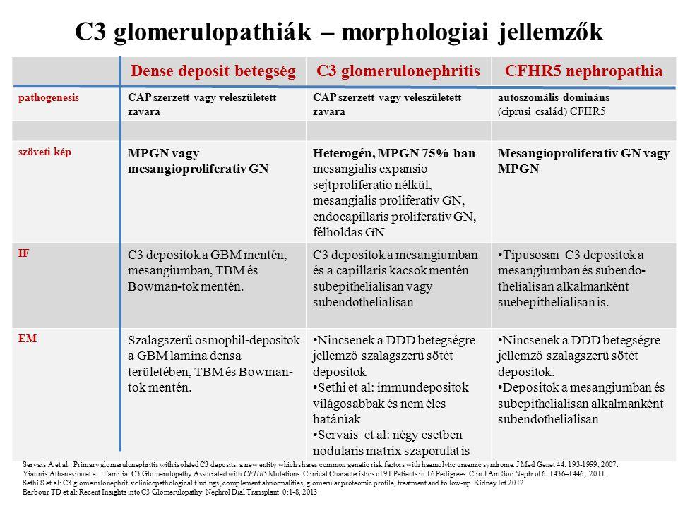 C3 glomerulopathiák – morphologiai jellemzők Dense deposit betegség