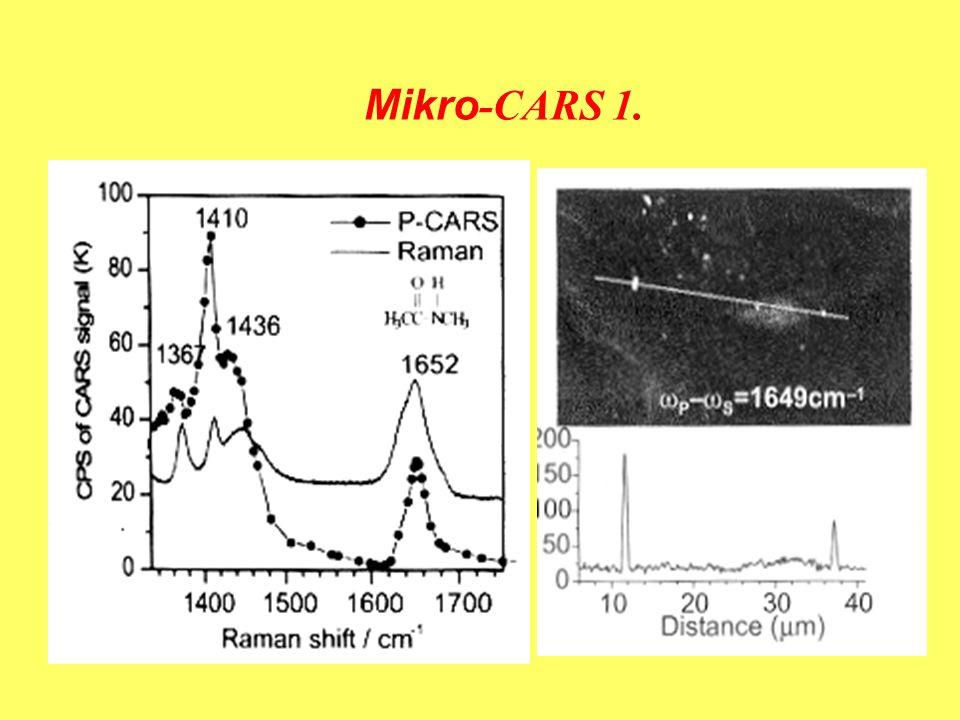 Mikro-CARS 1. 750 nm és 856 nm lézerek (Ti:zafir), sejt részlete, X.S.