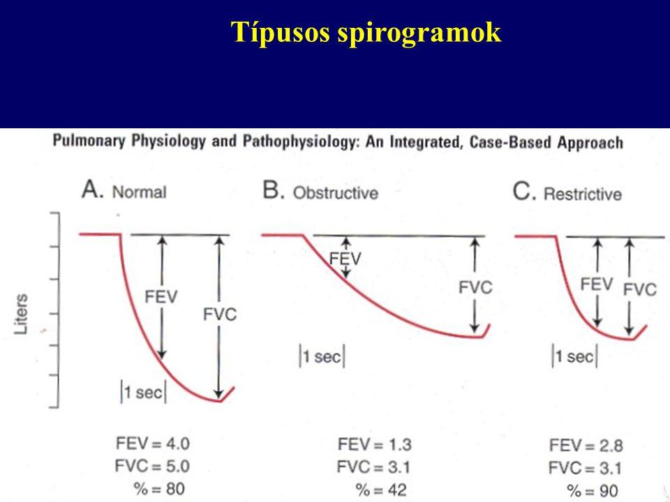 Típusos spirogramok