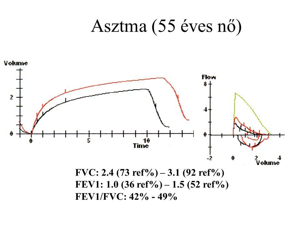 Asztma (55 éves nő) FVC: 2.4 (73 ref%) – 3.1 (92 ref%)