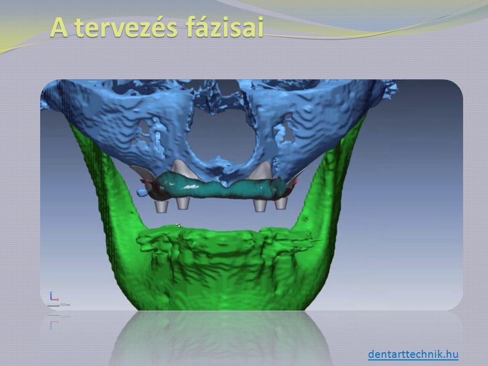 A tervezés fázisai dentarttechnik.hu