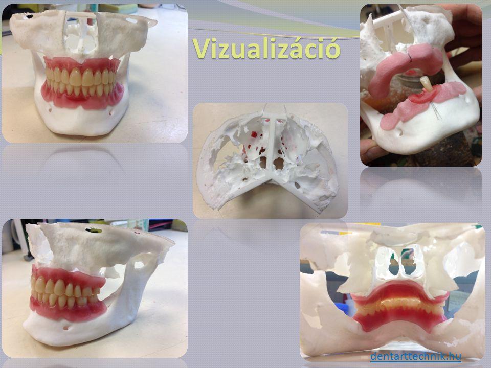 Vizualizáció dentarttechnik.hu