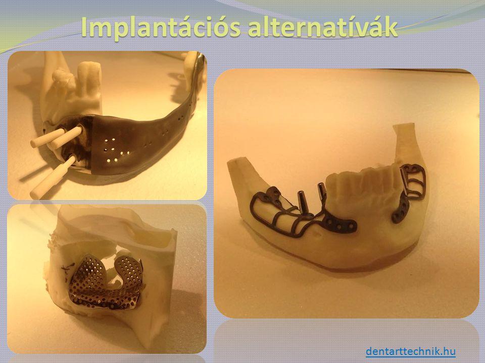 Implantációs alternatívák