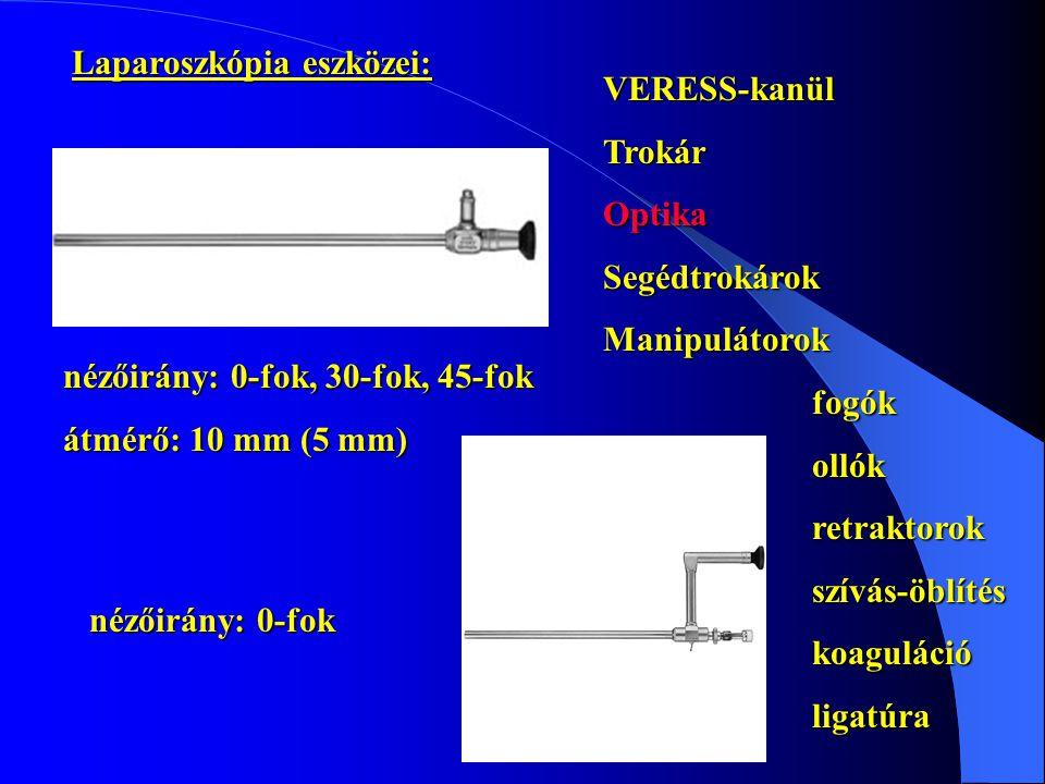Laparoszkópia eszközei: