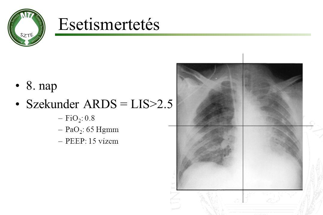 Esetismertetés 8. nap Szekunder ARDS = LIS>2.5 FiO2: 0.8