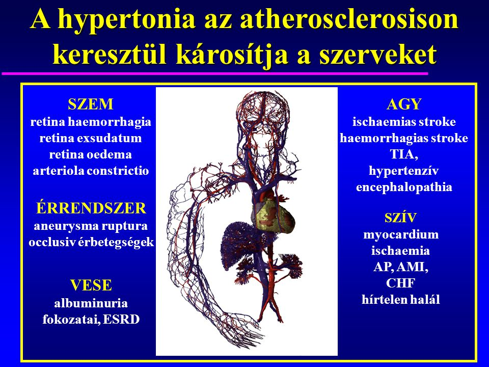 A hypertonia az atherosclerosison keresztül károsítja a szerveket