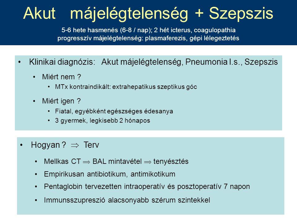Akut májelégtelenség + Szepszis 5-6 hete hasmenés (6-8 / nap); 2 hét icterus, coagulopathia progresszív májelégtelenség: plasmaferezis, gépi lélegeztetés
