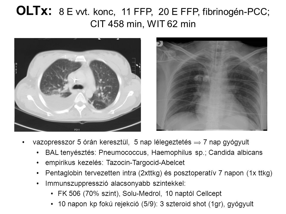 OLTx: 8 E vvt. konc, 11 FFP, 20 E FFP, fibrinogén-PCC; CIT 458 min, WIT 62 min