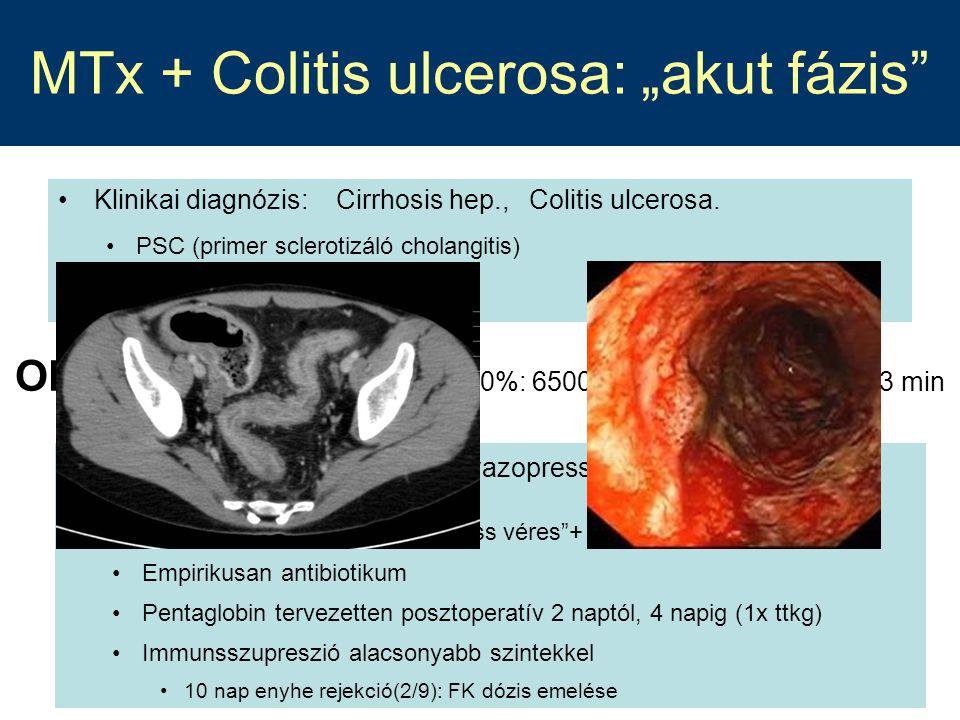 """MTx + Colitis ulcerosa: """"akut fázis"""