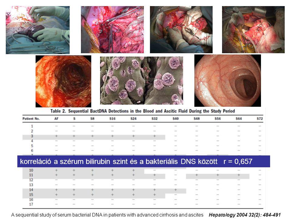 korreláció a szérum bilirubin szint és a bakteriális DNS között r = 0,657