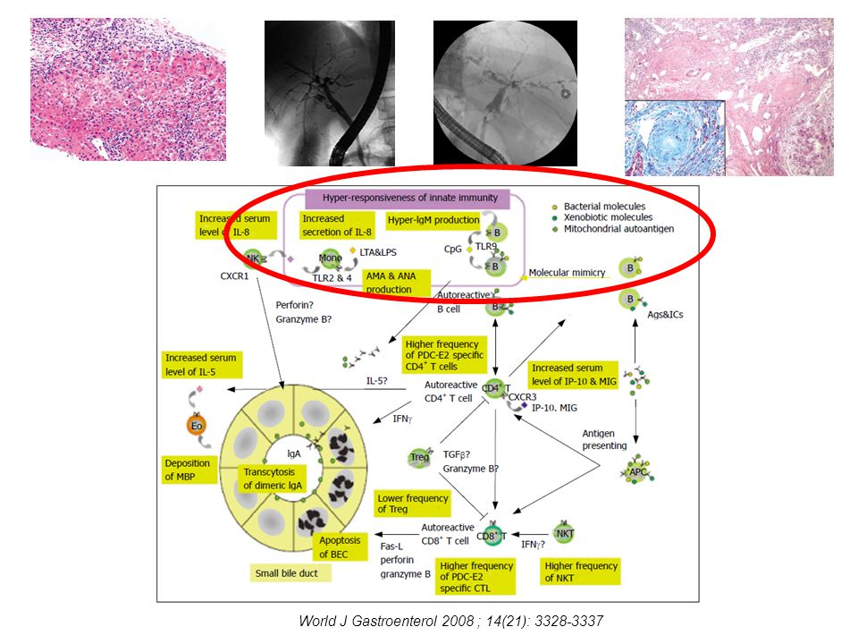 World J Gastroenterol 2008 ; 14(21): 3328-3337