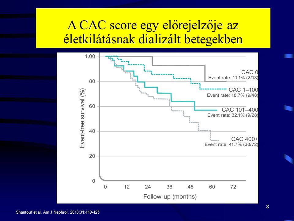 A CAC score egy előrejelzője az életkilátásnak dializált betegekben