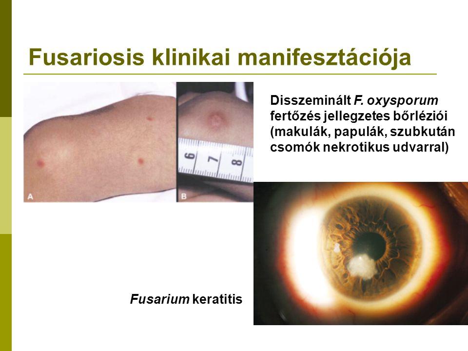 Fusariosis klinikai manifesztációja