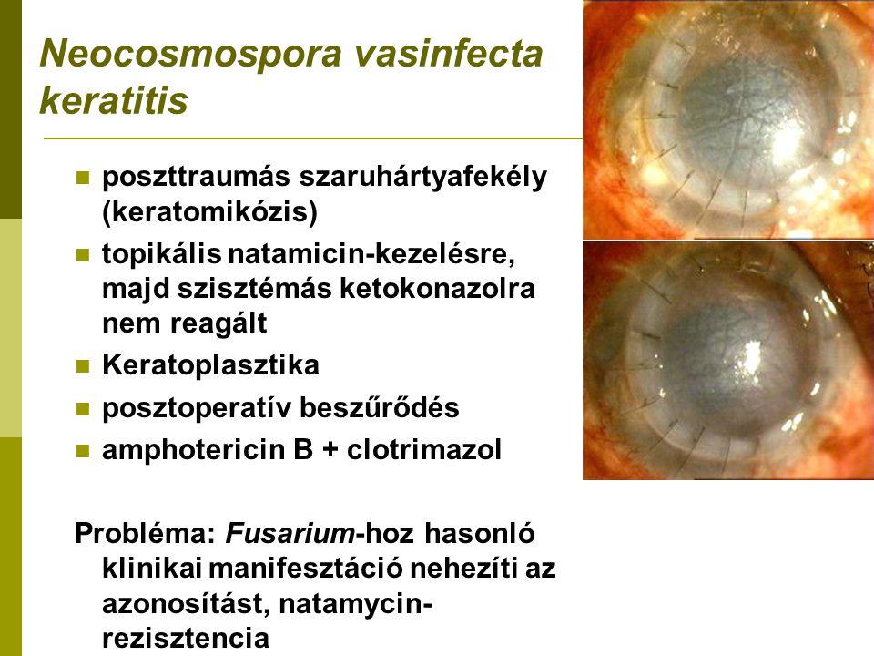 Neocosmospora vasinfecta keratitis