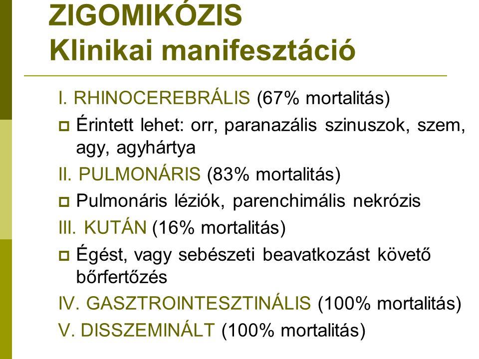 ZIGOMIKÓZIS Klinikai manifesztáció