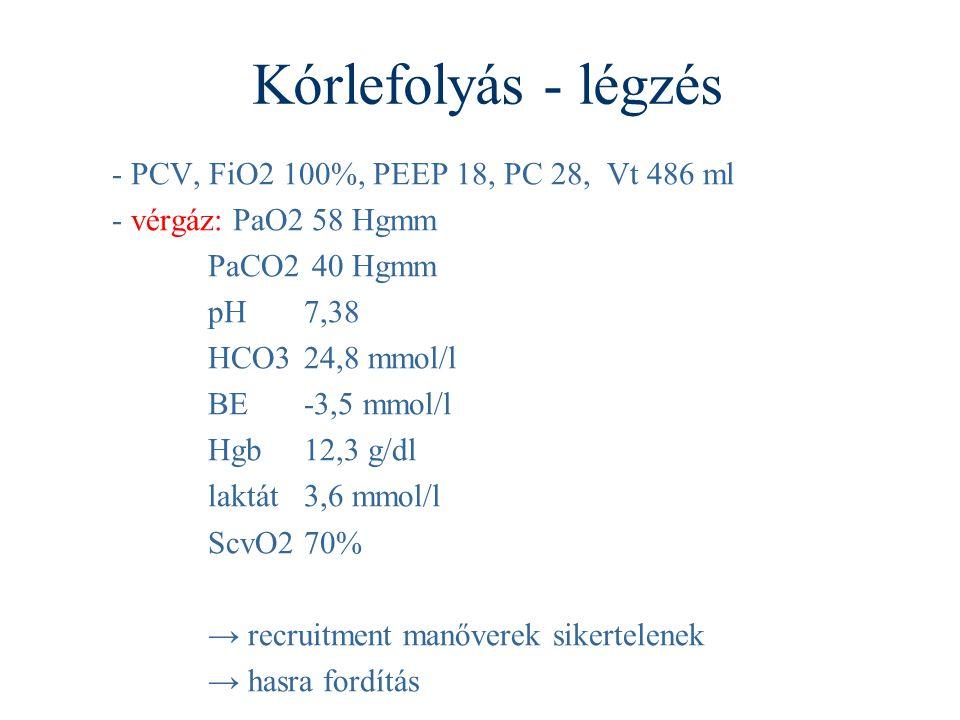 Kórlefolyás - légzés - PCV, FiO2 100%, PEEP 18, PC 28, Vt 486 ml