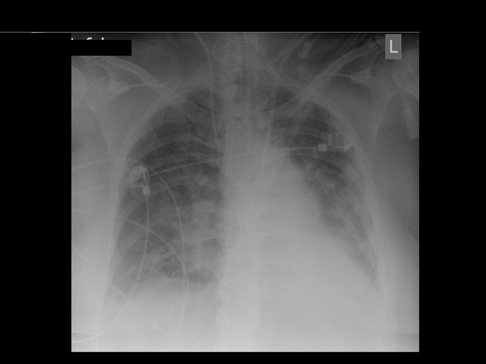 c(atelectotrauma),
