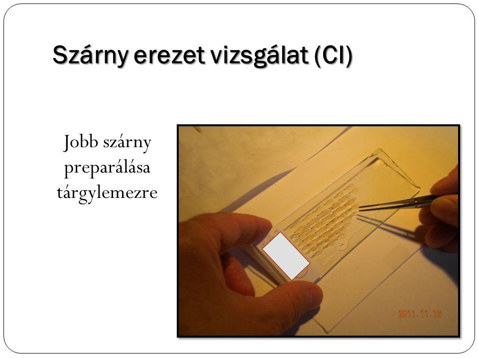 Szárny erezet vizsgálat (CI)