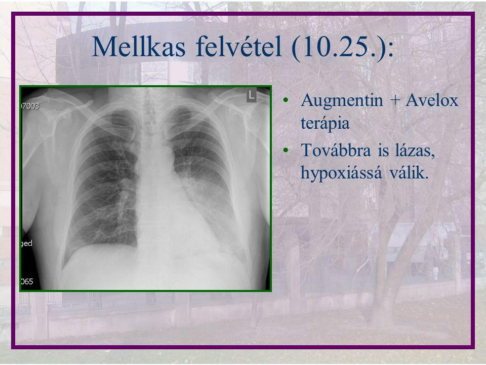 Mellkas felvétel (10.25.): Augmentin + Avelox terápia