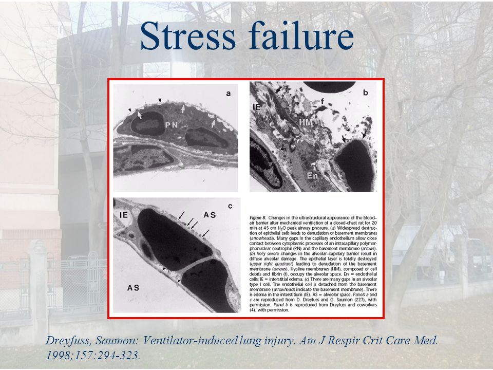 Stress failure Dreyfuss, Saumon: Ventilator-induced lung injury.
