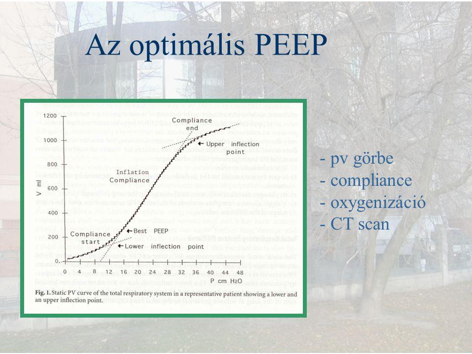 Az optimális PEEP - pv görbe - compliance oxygenizáció - CT scan