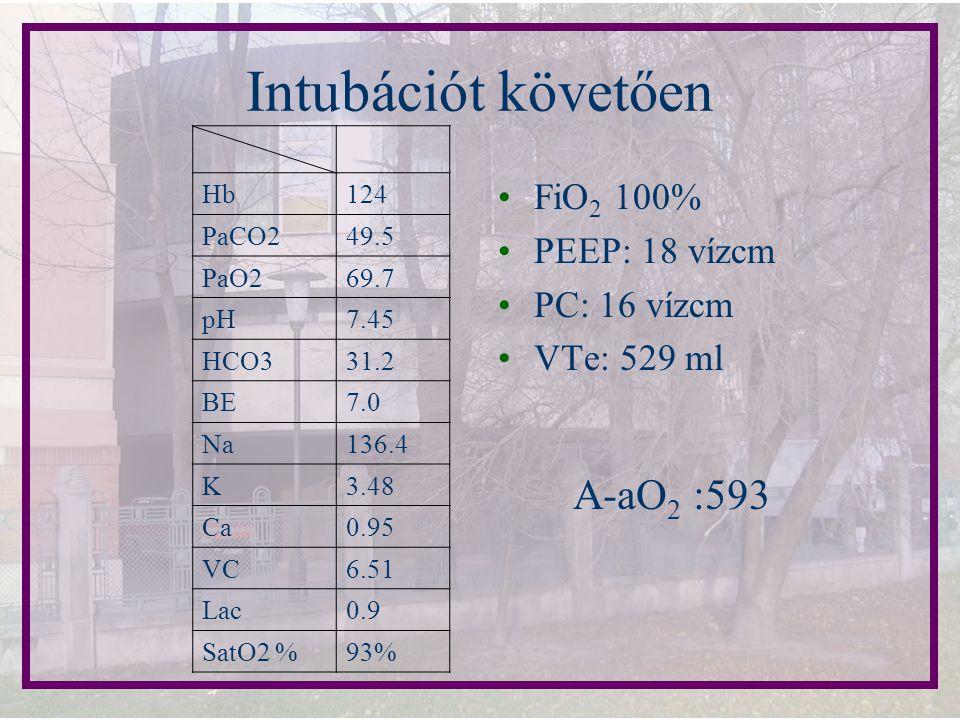 Intubációt követően A-aO2 :593 FiO2 100% PEEP: 18 vízcm PC: 16 vízcm