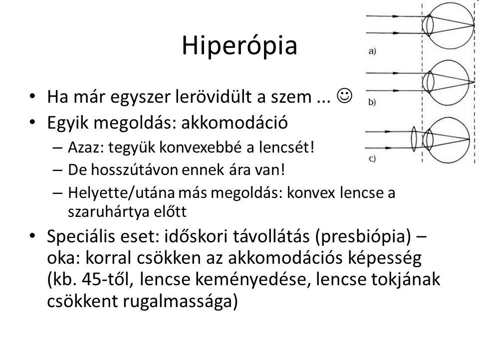 Hiperópia Ha már egyszer lerövidült a szem ... 