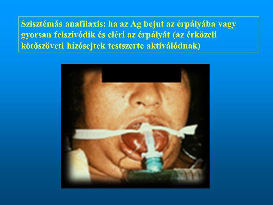 Szisztémás anafilaxis: ha az Ag bejut az érpályába vagy gyorsan felszívódik és eléri az érpályát (az érközeli kötőszöveti hízósejtek testszerte aktiválódnak)