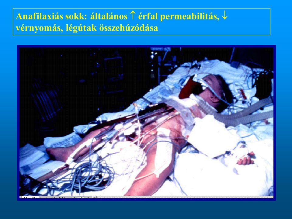 Anafilaxiás sokk: általános  érfal permeabilitás,  vérnyomás, légútak összehúzódása