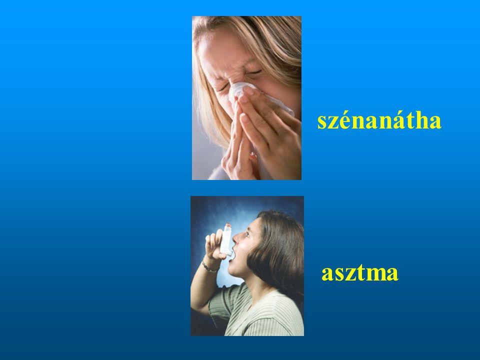 szénanátha asztma