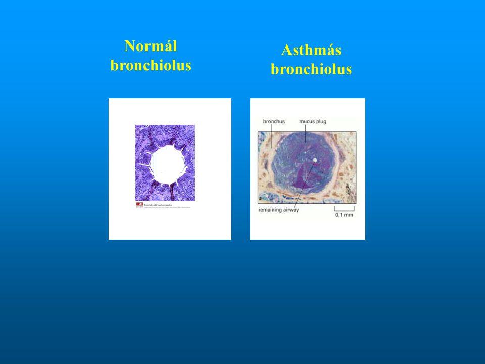 Normál bronchiolus Asthmás bronchiolus